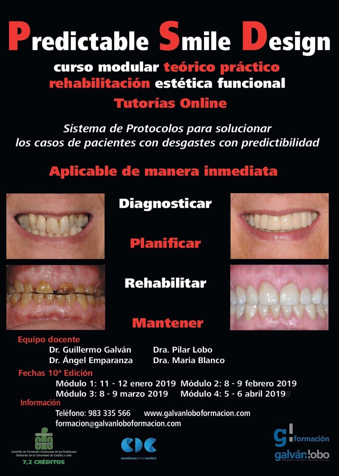 Predictable Smile Design. Curso Modular by Galván Lobo Formación